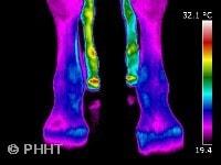 thermografie koude benen